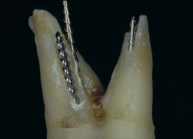 the result of an overenthusiastic attempt at root canal treatment of a maxillary second molar with large stainless steel files